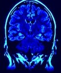 brain01 125